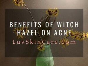 Benefits of Witch Hazel on Acne