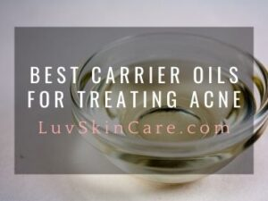 Best Carrier Oils for Treating Acne