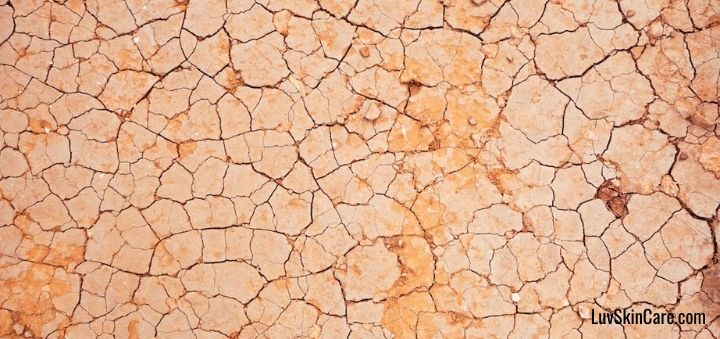 Can Acne Be Caused by Dry Skin?