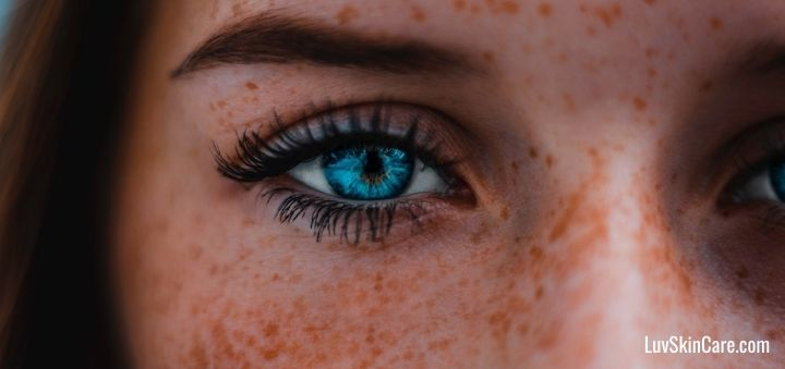 Does Freckle Removal Cream Really Work?