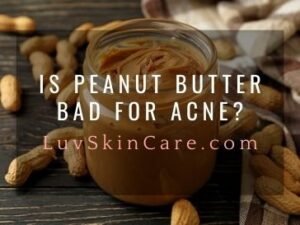 Is Peanut Butter Bad for Acne?