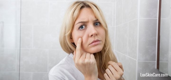 What Is the Difference Between Acne and Pimples